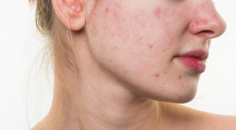 skin care, acne, low self esteem. rejuven, Stokesley