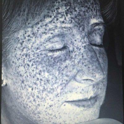 2011 UV Damage 3%