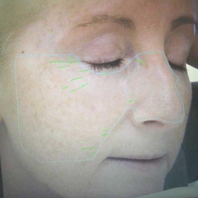 Wrinkles 2011 64%